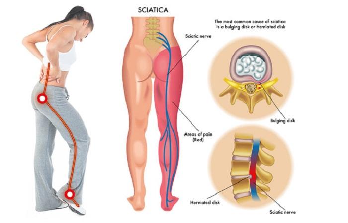 Đau thần kinh tọa, đau thần kinh tọa nguy hại nghiêm trọng đến hệ vận động