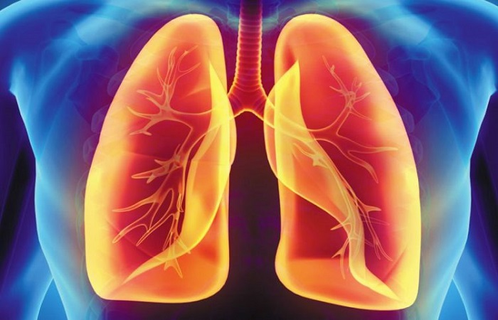 vấn đề về phổi, viêm phổi
